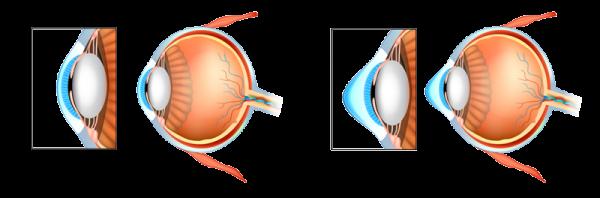 Ceratocone-comparativo-cornea