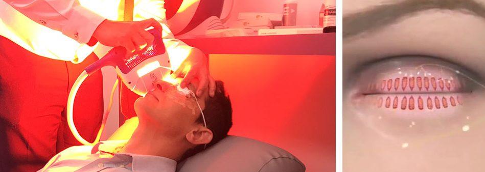 Luz pulsada sendo aplicada na região abaixo dos olhos estimulando a produção da lágrima.